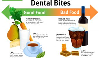 Dental Bites - Good Food v. Bad Food